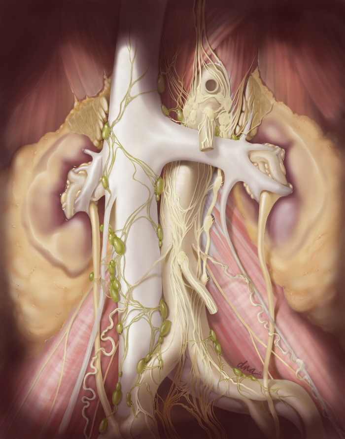 Retroperitoneal Lymph Node Dissection by Alexandra Baker ...