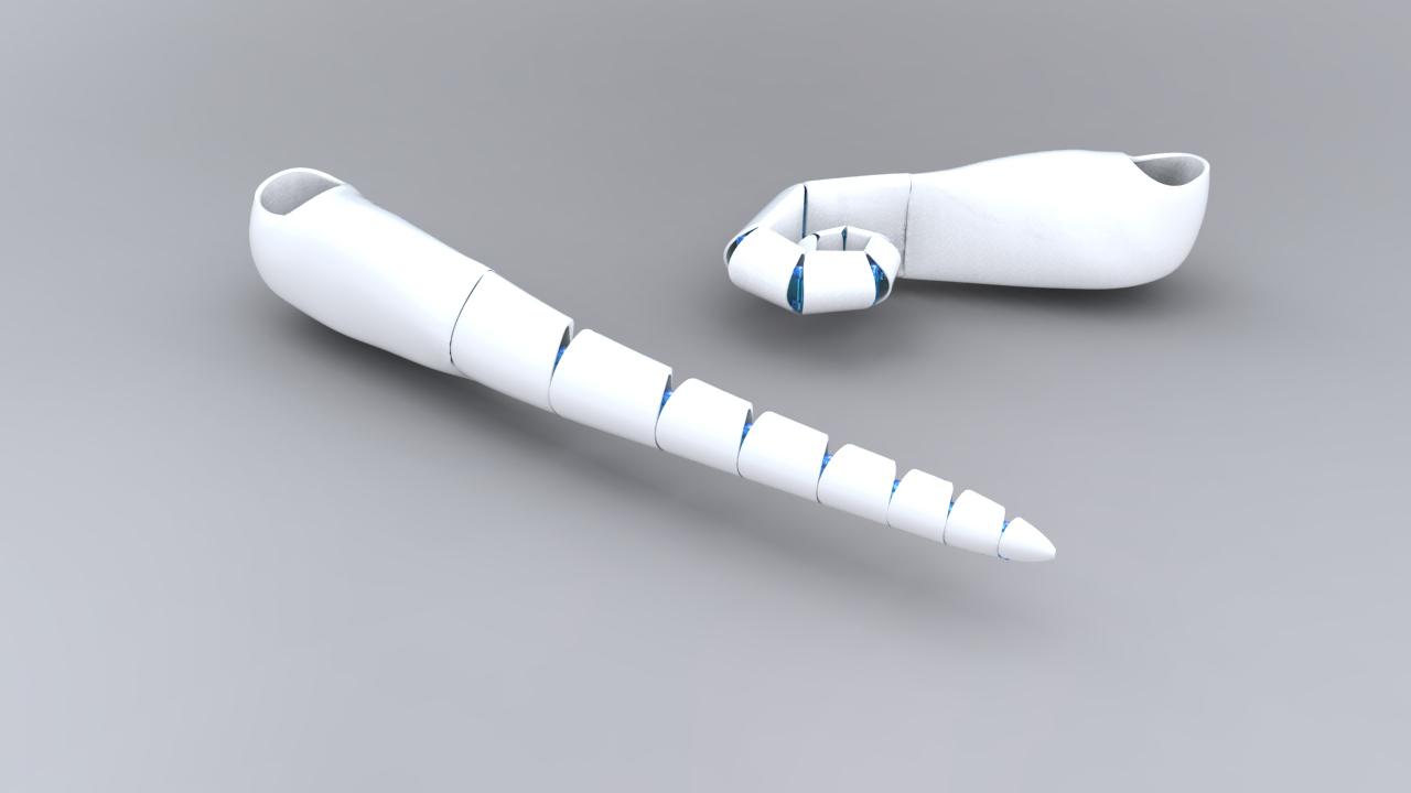 ComfortFlex® Prosthetic Socket System