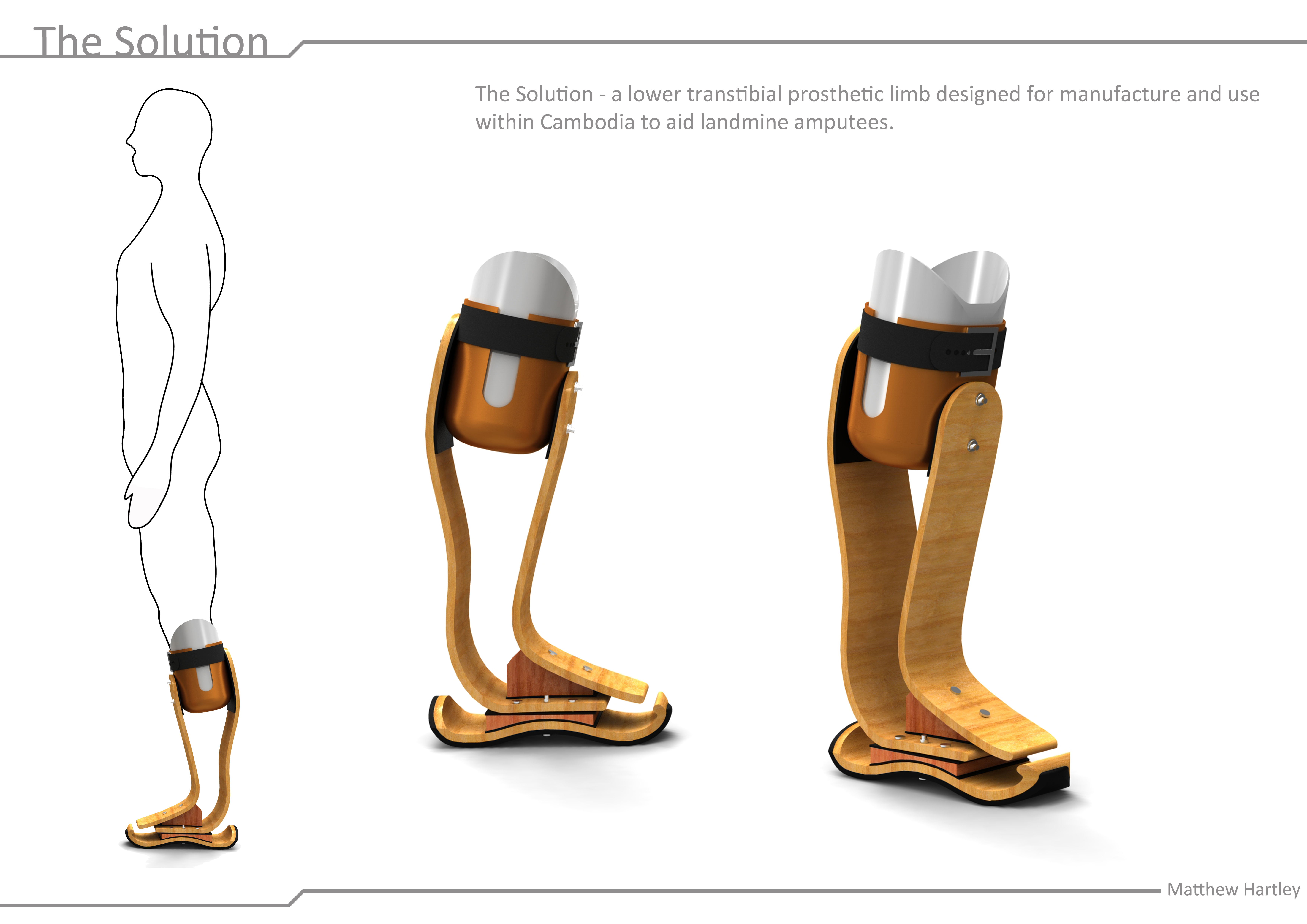 amputation and prothesis