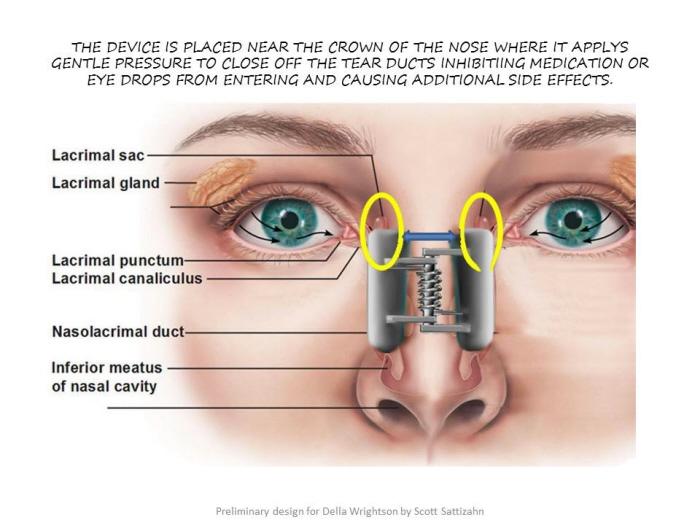 Infant Tear Duct Clamp by SCOTT SATTIZAHN at Coroflot com