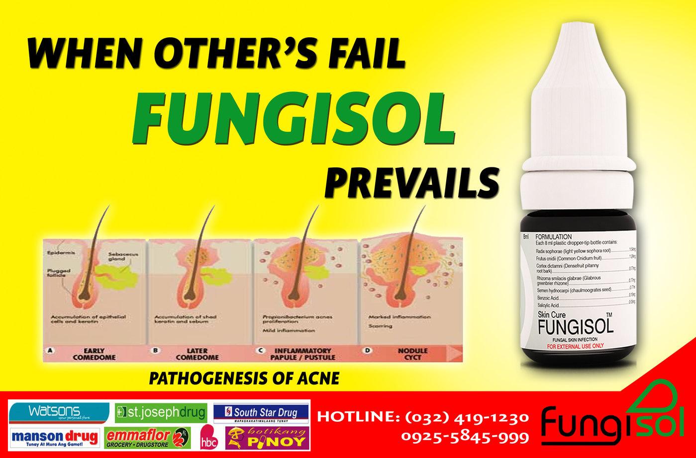 Fungisol Advertisement By Marilyn Sisa At Coroflot Com
